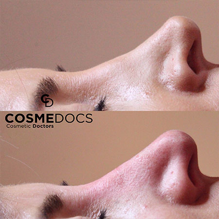 non surgical nose job before and after
