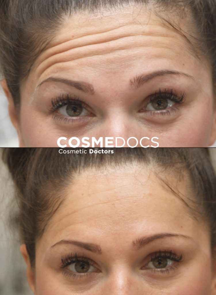 forhead botox before and after