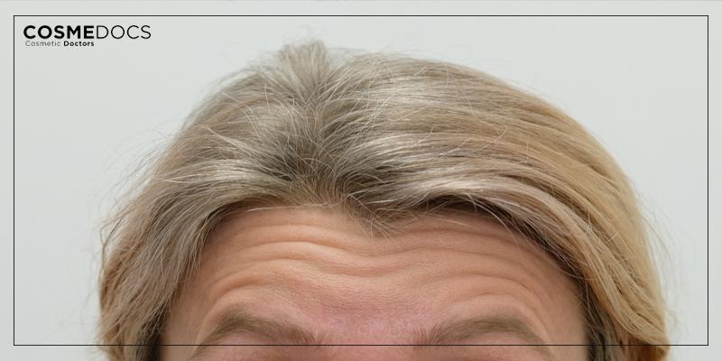 forhead wrinkles