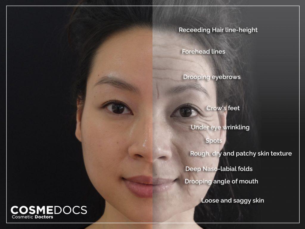 skin ageing areas