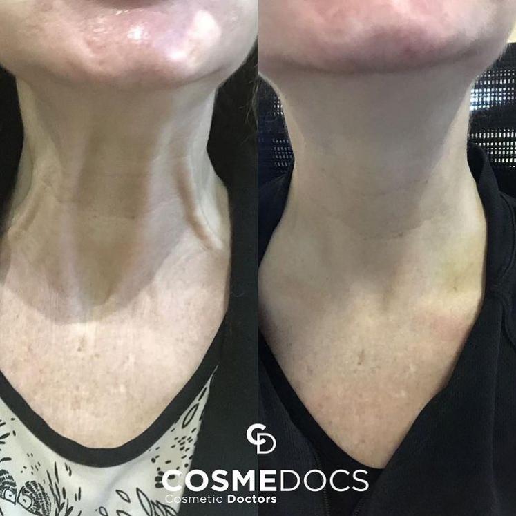 Collagen Boosting Facial Fillers