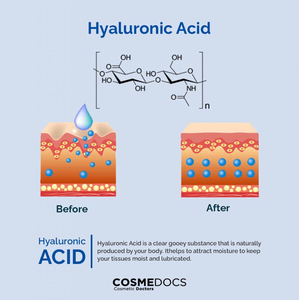 Hyaluronic Acid effects on skin