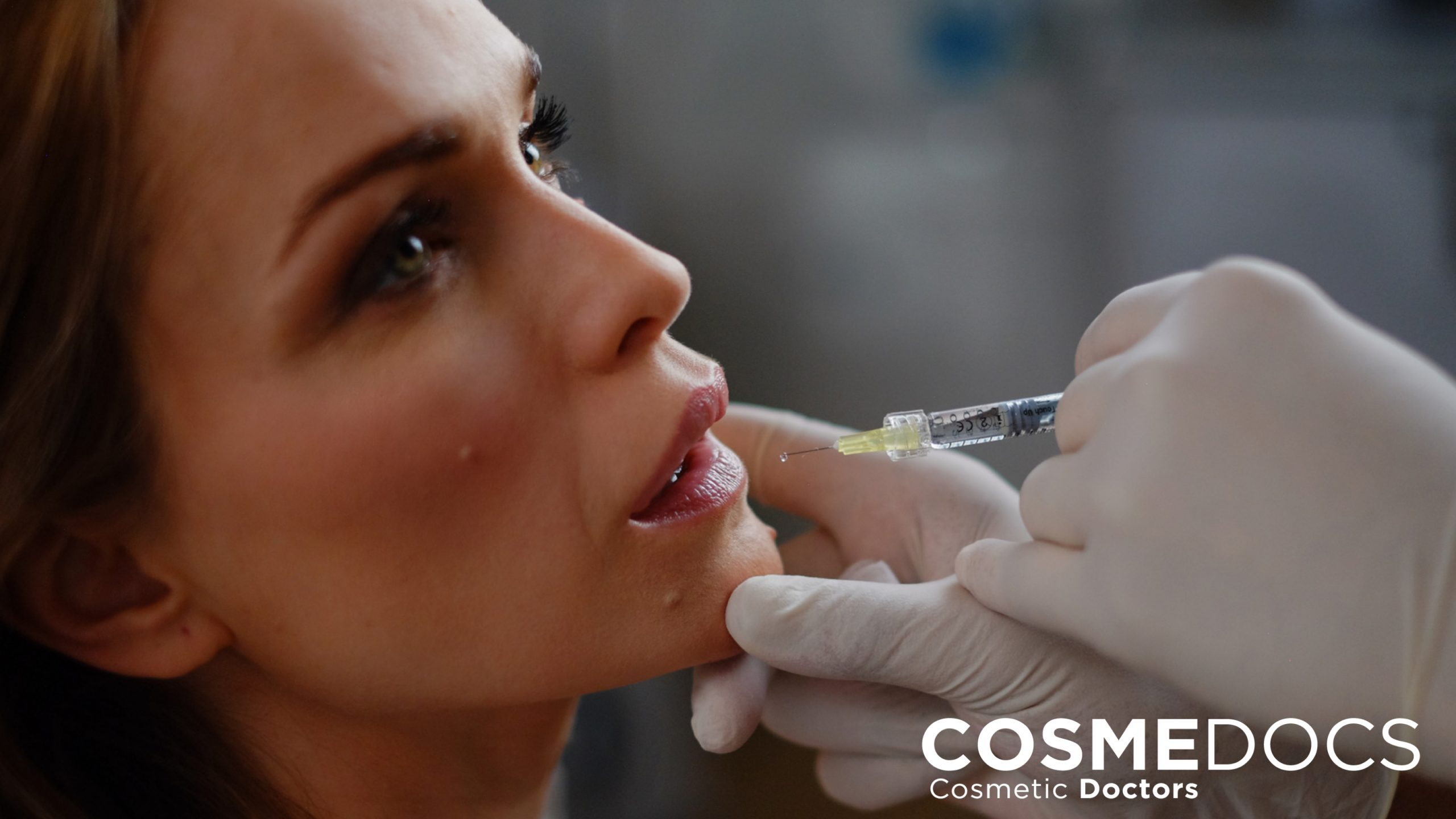 lip wrinkles treatment