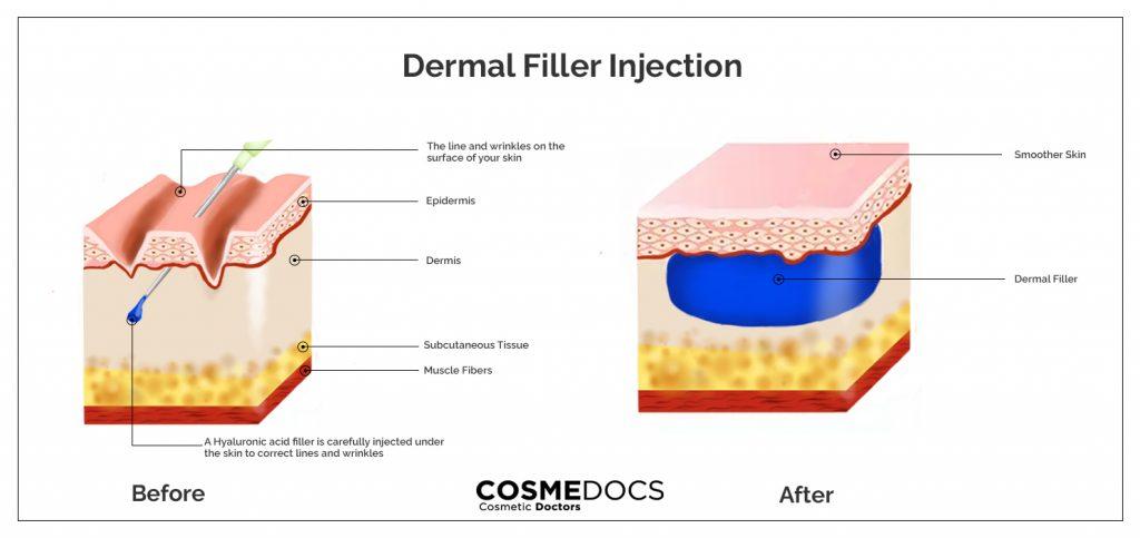 Dermal Filler before after effect illustration