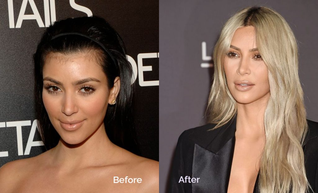 celebrities dermal fillers treatments before and after
