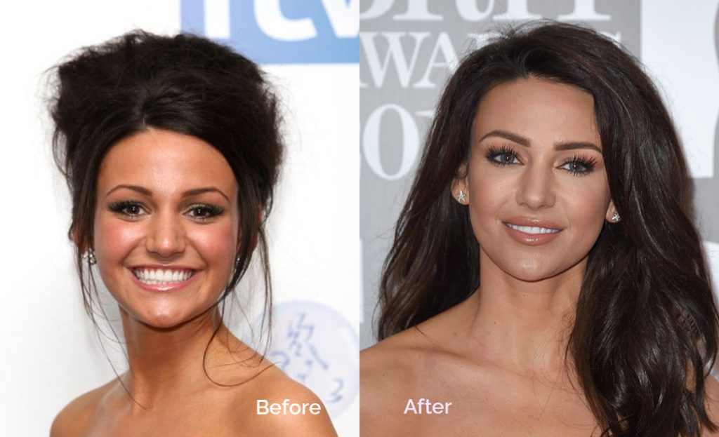 celebrities lip fillers treatments before and after