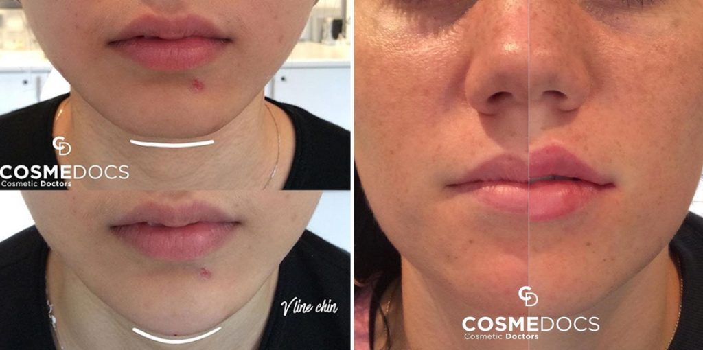 chin fillers before and after