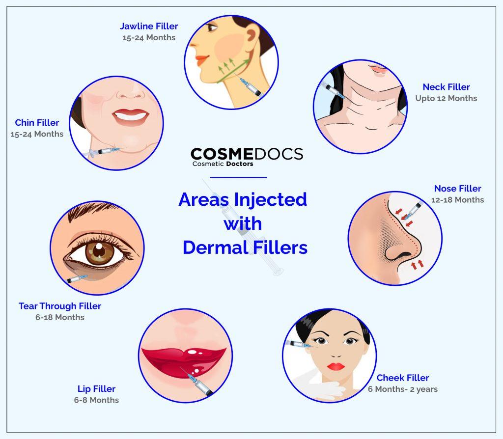 dermal fillers treatment areas