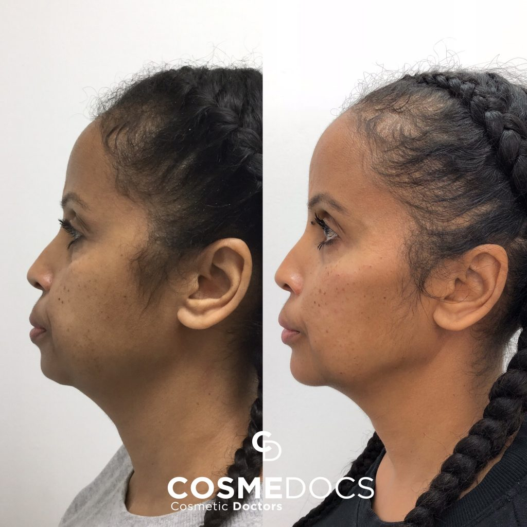 Jawline chin fillers before and after