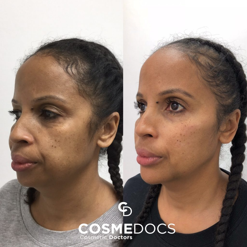 Jawline chin fillers treatment before and after