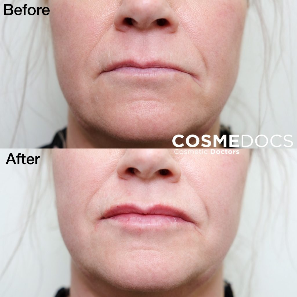 lip correction before and after