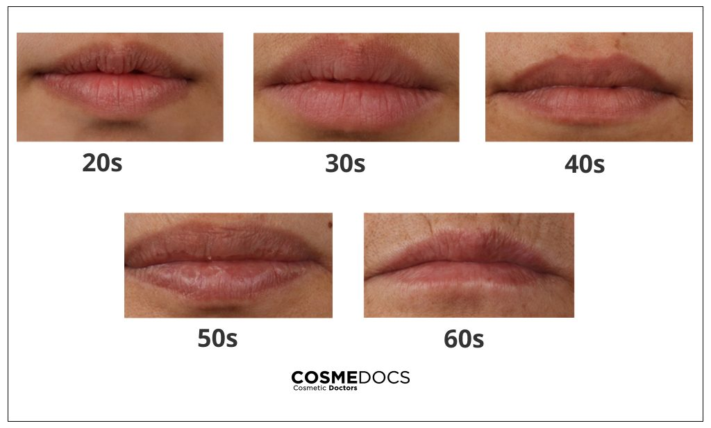 Lips Age With Time?