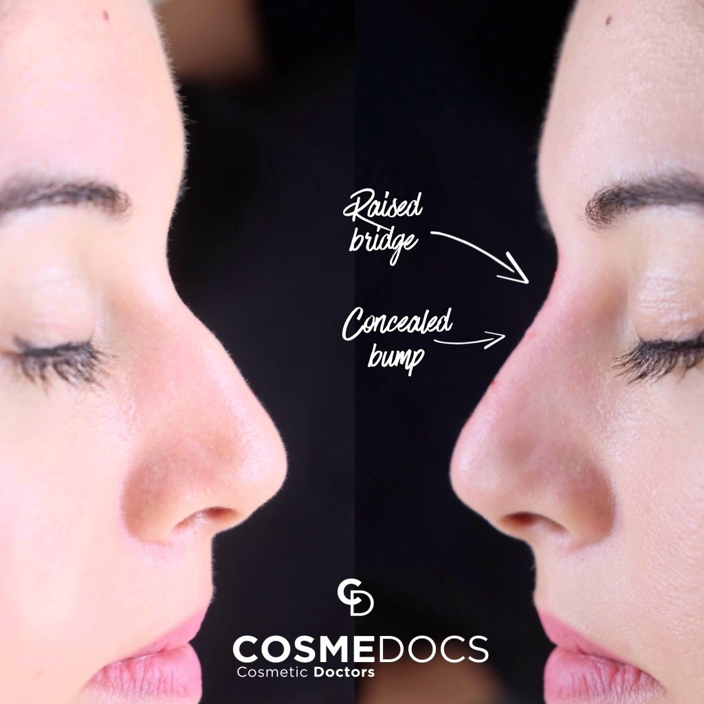 nose job treatment before and after