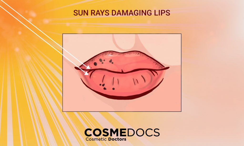 sun rays damaging lips