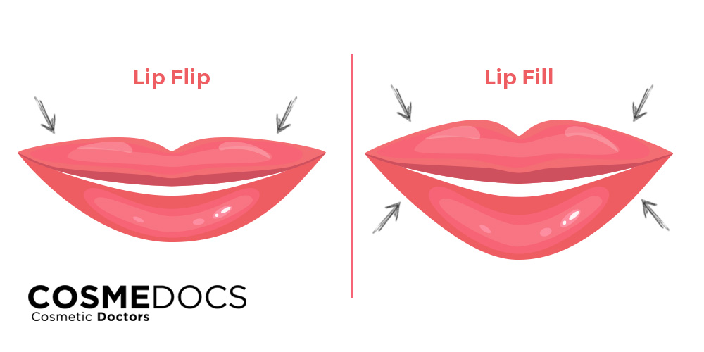 difference between lip flip and lip filler