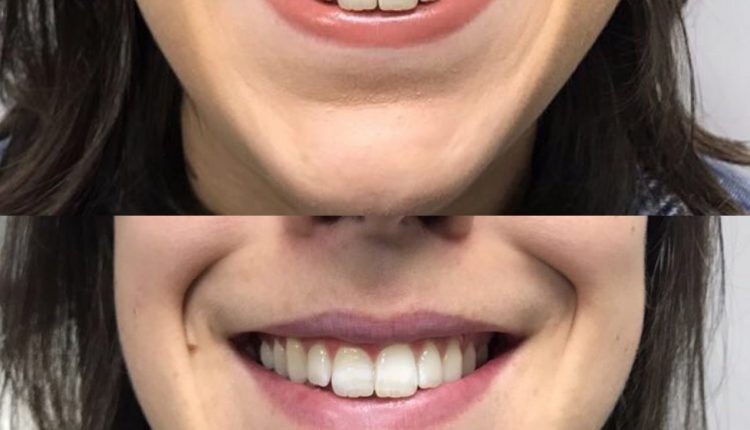 gummy-smile-before-and-after-scaled (2)
