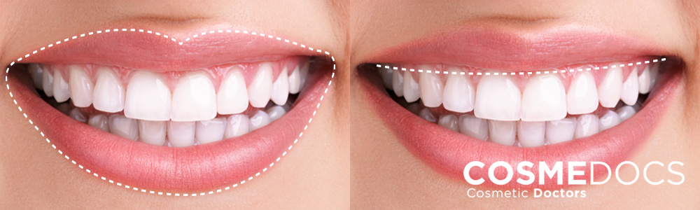 Lip lift for ideal smile