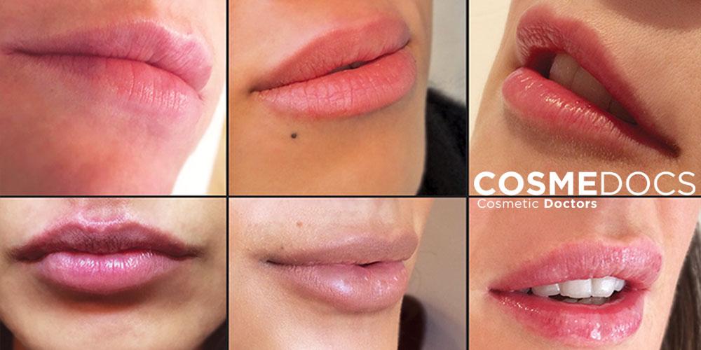psychology of fuller bigger lips