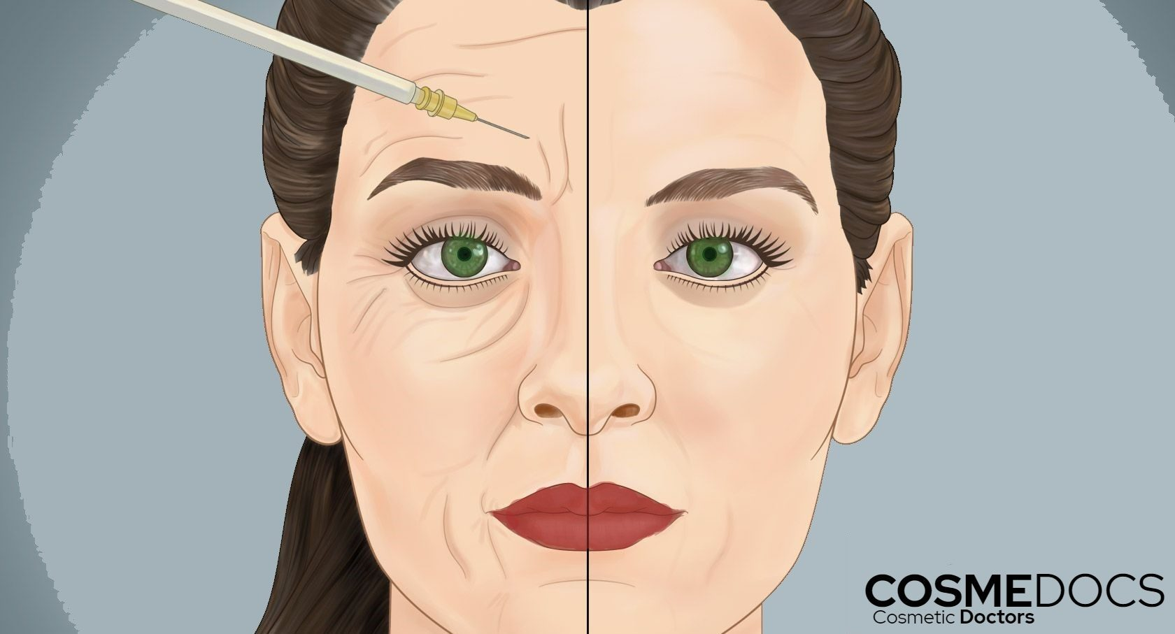 Frown-lines-Botox