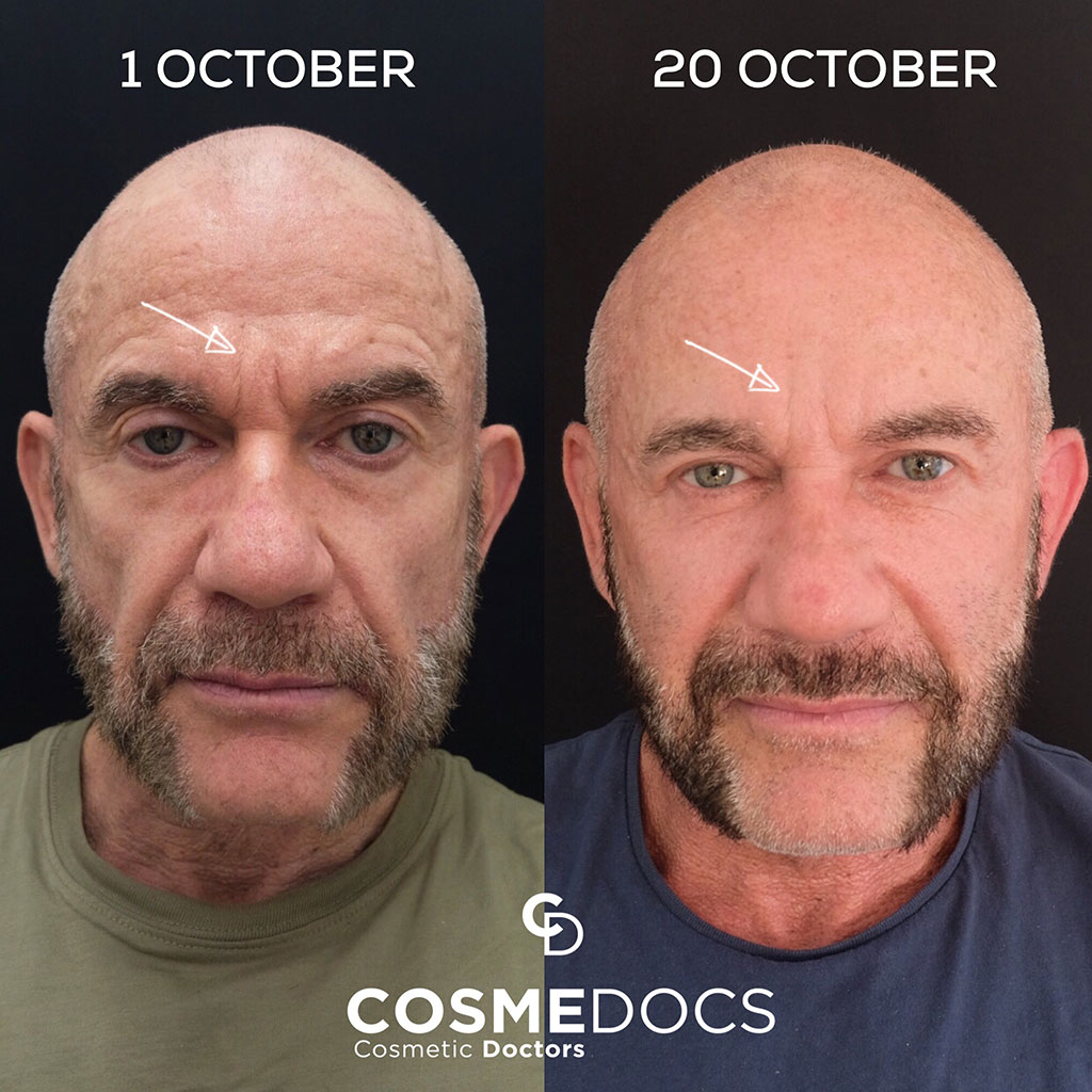frown lines treatment before and after