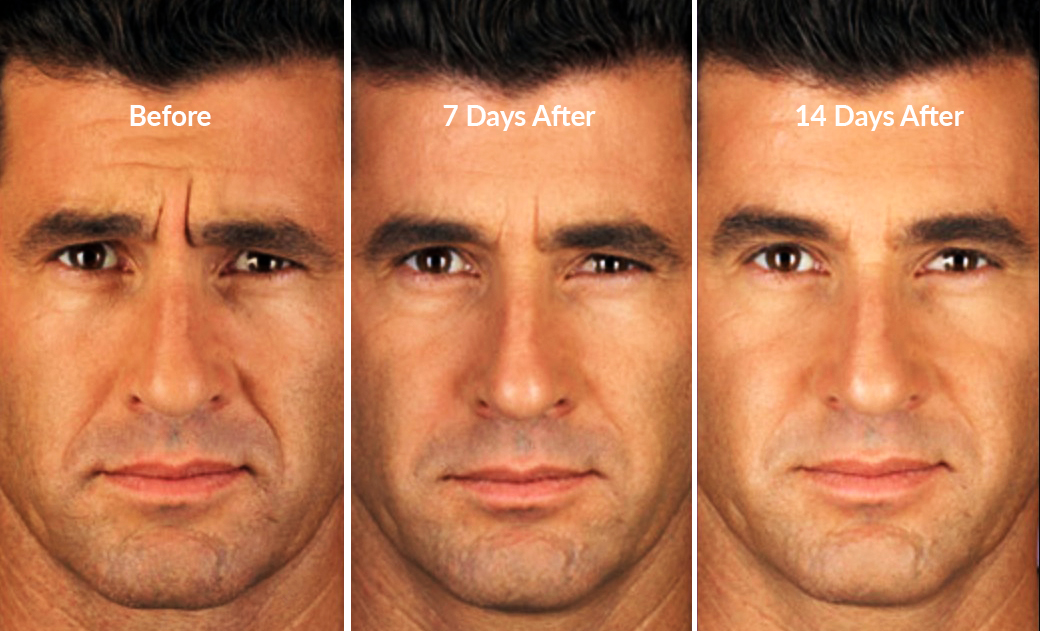 frown lines treatment with botox for men