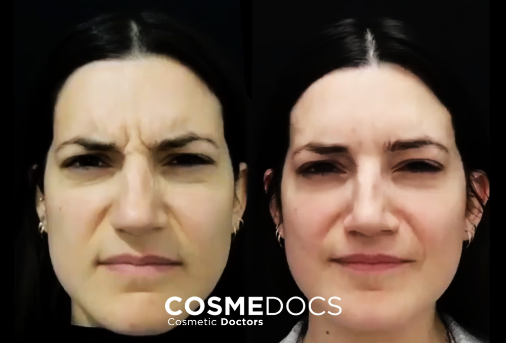 natural botox frown lines result