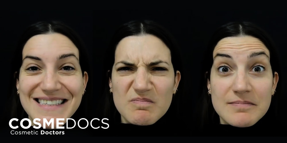 forhead frownline with facial expressions