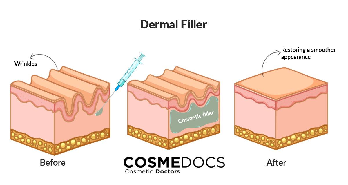 how dermal fillers works on frown lines illustration