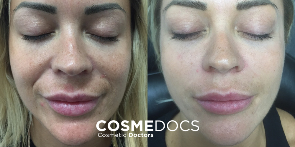 microneedling for lines and wrinkle
